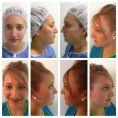 Cirugía de la nariz (Rinoplastia) - Foto Antes de - Dr. Jarold Effer Taylor