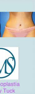 Abdominoplastia - Cirugía Estética del Abdomen, proporciona una pared abdominal más plana, sin estrías, flacidez o cicatrices por cesáreas. Es una forma como mejorar notoriamente la forma del ombligo.