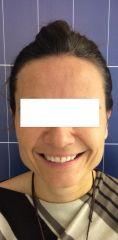 Operazione orecchie (Otoplastica) - Foto del prima - LaCLINIQUE of Switzerland®
