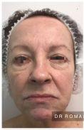 Dr Romain Viard - Blépharoplastie inférieure chez une patiente de 62 ans marquée par le tabagisme. Même si le flash de la photo postopératoire améliore le résultat, on constate un vrai rajeunissement chez cette patiente avec une intervention simple sans hospitalisation sous anesthésie locale approfondie. Résultat à 3 mois.