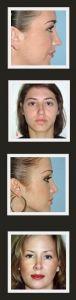 Rhinoplasty (Nose Job) - Photo before - Ary Krau M.D.