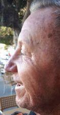 Nasenkorrektur - Rhinoplastik - Vorher Foto - Dr. med. Jozefina Skulavik