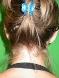 Fülműtét (Otoplasztika) - Képek előtte - Art Medic Plasztikai Sebészet és Fogászat