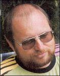 Transplantace vlasů - fotka před - MUDr. Pavel Koňařík