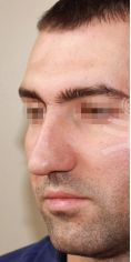 Plastika nosu (Rhinoplastika) - fotka před - Mediestetik, skupina klinik