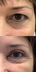 Operace očních víček (Blefaroplastika) - fotka před - MUDr. Patrik Richtr, Ph.D.