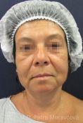 Operace dolních víček - fotka před - MUDr. Petra Moravcová - Perfect Clinic