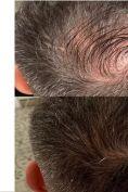 Trapianto capelli - Foto del prima - Dott.ssa Gianmarì Di Nola