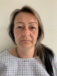 MUDr. Lenka Ottová - Operace očních víček (Blefaroplastika)