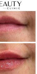 Neo Beauty Clinic - Hydratace rtů pomocí kyseliny hyaluronové. Dodá objem, zvýrazní kontury, vyhladí vrásky a osvěží. Efekt je okamžitý, finální vzhled rtů do 4 týdnů, kdy kyselina pojme vodu a dosáhne tak svého max objemu. Foto ihned po zákroku.