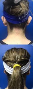 Otoplastia - Luce maravillo. Las orejas prominentes suelen ser causa de baja autoestima, inseguridad y hasta de bullying.
