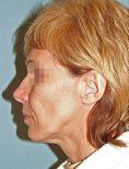Facelift (operace obličeje), SMAS lifting - fotka před - Laderma - klinika plastické chirurgie