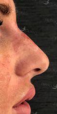 Výplně na bázi kyseliny hyaluronové - Výsledek modelace nosu kyselinou hyaluronovou