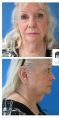 Dr Romain Viard - Patiente de 73 ans métamorphosée par un lifting cervico facial, blépharoplastie des 4 paupières et lipostructure faciale. Résultat à 6 mois. Notez la redéfinitition parfaite de son angle cervico mentonnier.