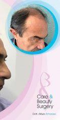 Trapianto capelli - Foto del prima - Dott. Arturo Amoroso