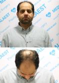 Hair Transplant - Photo before - Medicalaest Greffe de Cheveux