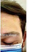 Peeling chimico - Foto del prima - Dott. Giulio Maria Maggi