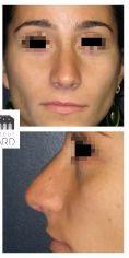 Dr Romain Viard - Résultat à 3 mois de face : Affinement de la pointe et du dorsum.