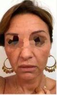 Aumento labbra - Foto del prima - Dott. Arturo Amoroso