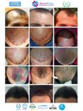Hair Transplant - Photo before - Dr. Ahmed ALTAN MD