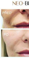 Neo Beauty Clinic - Odstranění nosoretních vrásek výplní na bázi kyseliny hyaluronové. Zákrok provádíme převážně kanylou, proto je téměř bezbolestný. Efekt vydrží minimálně 12 – 18 měsíců.