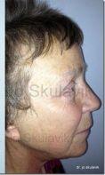 Facelift, SMAS Facelift - Vorher Foto - Dr. med. Jozefina Skulavik