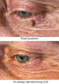 Entfernung von Hautauswüchsen und Muttermalen (Hauttumoren) - Vorher Foto - Bieńkowscy Clinic®