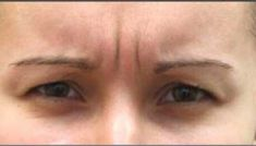 Botulinum toxin - Wrinkle Removal - Photo before - Dr Irene Gladstein MD