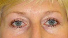 Augenlidstraffung - Vorher Foto - MUDr. Karel Urban