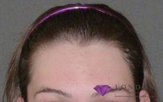 Hair Transplant - Photo before - Mr. ChristopherInglefield BSc, MBBS, FRCS(Plast)