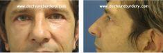 Harold Eburdery - homme de 46 ans blépharoplastie supérieure pour dermatochalasis (excès de peau) blépharoplastie inférieure pour traiter les poches malaires et l