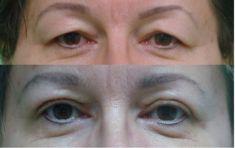 Korekcja powiek (Blepharoplastyka) - Zdjęcie przed - Chirurgia Plastyczna E.A. Barańscy