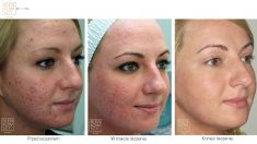 Laserbehandlung von Akne - Vorher Foto - Bieńkowscy Clinic®