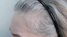 Przeszczep włosów - transplatacja włosów - Efekt zaraz po zabiegu przeszczepu włosów metodą FUE u pacjentki z problemem zakoli