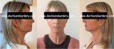 Chirurgie du double-menton - femme de 31 ans lipoaspiration du cou, du rebord mandibulaire et des bajoues