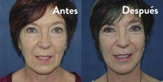Dra. Ana Martinez Padilla - Foto Antes de - Dra. Ana Martinez Padilla