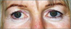 Operácia očných viečok (Blepharoplastika) - Fotka pred - MUDr. Jozef Fábry