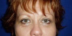 Operace očních víček (Blefaroplastika) - fotka před - Klinika Laser Esthetic