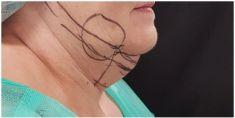 Dermaestet, s.r.o. - Odstranění podbradku pomocí Slimlipo a níťového liftingu