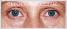 Eyelid surgery (Blepharoplasty) - Photo before - Cleopatra Clinic, Klinika Plastické Chirurgie s.r.o.