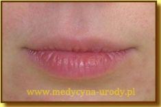 Powiększanie ust (Augmentacja) - Zdjęcie przed - dr Małgorzata Kossut