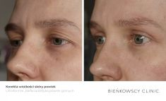 Eyelid surgery (Blepharoplasty) - Photo before - Dr n. med. Marcin Bieńkowski