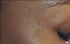 Léčba křečových žil (varixů) - fotka před - Lékařské laserové centrum