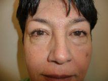 """Operace očních víček (Blefaroplastika) - Pacientka s tukovým nadbytkem na dolních víčcích tvořící kruhy pod očima – """"pytle"""". PO: půl roku od operace"""
