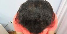 Hair Transplant - Photo before - Dr. Maletić Ana