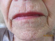 Plexr - Pacientce, které je 72 let byla ošetřena brada přístrojem Plexr a po cca měsíci můžeme vidět krásný výsledek a výrazné zjemnění vrásek. Ošetření je vhodné i pro tyto věkové kategorie klientů a po vyloupání stroupků se kůže zcela zhojí.