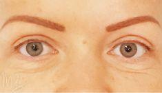 Operácia očných viečok (Blepharoplastika) - Fotka pred