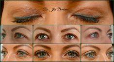 Operácia očných viečok (Blepharoplastika) - Fotka pred - MUDr. Ján Bumbera