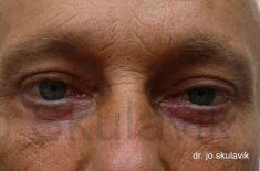Augenlidstraffung - Vorher Foto - Dr. med. Jozefina Skulavik