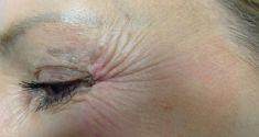 Odstránenie vrások pomocou botulotoxínu - Fotka pred - Chirkoz Medical Clinic